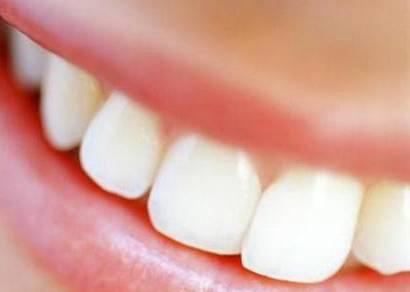 Mais de 50% dos brasileiros não têm acesso adequado a escovas de dente