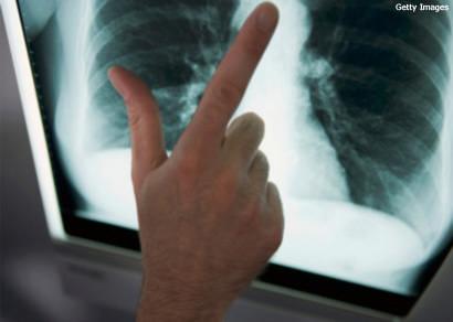 Minas começa a usar novo tratamento para combater a tuberculose