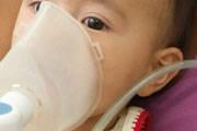 Pneumonia é a doença que mais mata crianças menores de 5 anos