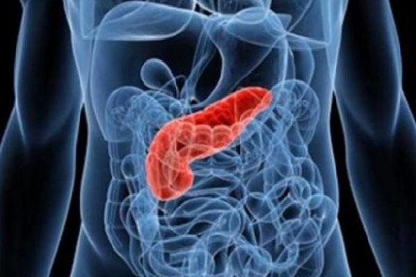 Resultado de imagem para Pesquisadores criam biossensor para detectar câncer de pâncreas